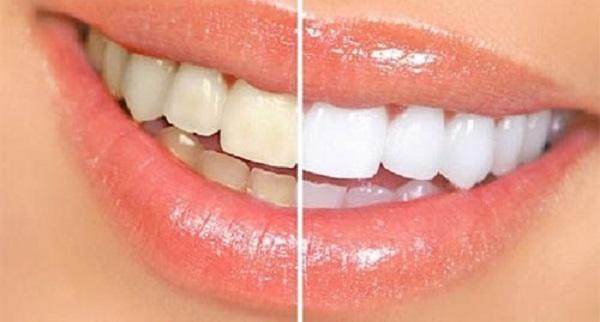 giá lấy cao răng ở Hà Nội bao nhiêu tiền, lấy cao răng hà nội, giá lấy cao răng hà nội, lấy cao răng ở hà nội giá bao nhiêu, giá lấy cao răng ở hà nội, lấy cao răng ở hà nội, giá lấy cao răng tại hà nội, lấy cao răng giá rẻ ở hà nội, lấy cao răng giá rẻ tại hà nội, giá lấy cao răng uy tín ở hà nội