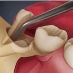 Lỗ hổng sau nhổ răng khôn – Nguy hiểm hay không?