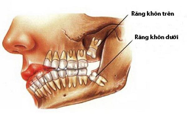 lỗ hổng sau khi nhổ răng, nhổ răng khôn để lại lỗ, nhổ răng để lại lỗ, lỗ sau khi nhổ răng khôn
