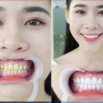 Những lưu ý sau khi tẩy trắng răng tại nhà bạn không nên bỏ qua