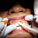 Viêm lợi trùm răng cửa? Cắt lợi trùm răng cửa có đau không?