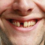 Nằm mơ thấy tự nhổ răng mình có sao không? Ý nghĩa tâm linh