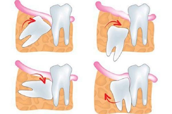 có nên nhổ răng số 8 hàm trên không, có nên nhổ răng số 8 không, nhổ răng số 8 có nguy hiểm không, nhổ răng số 8 hàm trên có nguy hiểm không, nhổ răng số 8 có ảnh hưởng gì không, nhổ răng số 8, nhổ răng số 8 có nguy hiểm ko, nhổ răng số 8 hàm dưới có nguy hiểm không, có nên nhổ răng số 8, nhổ răng số 8 có nguy hiểm