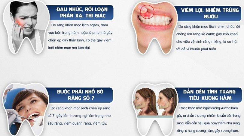 nhổ răng số 8 ở đâu tốt, địa chỉ nhổ răng số 8 an toàn, địa chỉ nhổ răng số 8