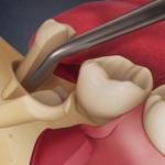 Nhổ răng số 8 ở đâu tốt? Địa chỉ nha khoa nhổ răng số 8 uy tín