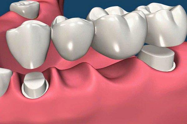 Bọc răng sứ là gì? Các trường hợp có thể bọc răng sứ?