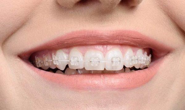 Niềng răng nên ăn gì, niềng răng ăn gì