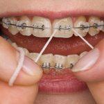 Niềng răng có đau không? Niềng răng giai đoạn nào đau nhất?