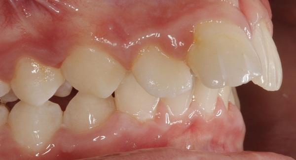 niềng răng hô lưu ý, niềng răng hô lưu ý gì, niềng răng hô