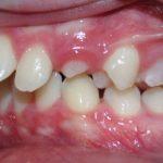 Niềng răng hô – Những lưu ý không nên bỏ qua!