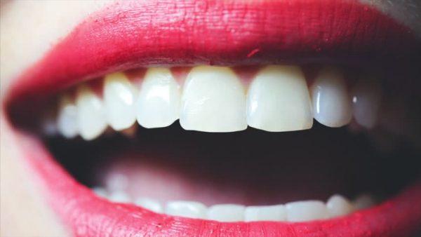 niềng răng tiếng anh, niềng răng tiếng anh là gì, niềng răng trong tiếng anh, nieng rang tieng anh, răng cửa tiếng anh là gì, hàm răng tiếng anh là gì, nieng rang tieng anh la gi, chân răng tiếng anh, ê buốt răng tiếng anh, sâu răng tiếng anh là gì, tôi đang niềng răng tiếng anh là gì, chỉnh nha tiếng anh là gì, nẹp răng tiếng anh là gì