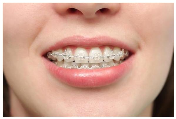 niềng răng nhổ răng số 4, răng số 4 là răng nào, nhổ răng số 4 có ảnh hưởng gì không, răng số 4 có mấy chân, nhổ răng số 4 có nguy hiểm không, nhổ răng số 4 hàm trên, niềng răng nhổ răng số 4 có ảnh hưởng gì không,nhổ răng số 4 khi niềng răng