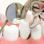 Niềng răng nhổ răng số 4 có nguy hiểm không?