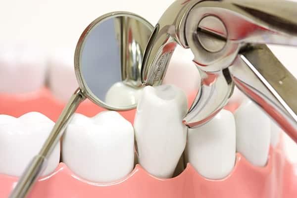 niềng răng nhổ răng số 4, răng số 4 là răng nào, nhổ răng số 4 có ảnh hưởng gì không, răng số 4 có mấy chân, nhổ răng số 4 có nguy hiểm không, nhổ răng số 4 hàm trên, niềng răng nhổ răng số 4 có nahr hưởng gì không,nhổ răng số 4 khi niềng răng