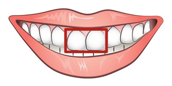 răng cửa to và hơi hô, răng cửa to và hô nên làm gì, tướng răng cửa to, răng cửa to, răng cửa to xem tướng, răng cửa to và hô, răng cửa to nói lên điều gì, 2 răng cửa to, người có răng cửa to, mài răng cửa to, răng cửa to vuông, răng cửa to và thưa, răng cửa to thì sao, 2 răng cửa to và hô, răng cửa to và dài, râng cửa to và hô nên làm gì, răng cửa to tướng số, răng cửa to nên làm gì, răng cửa to có ý nghĩa gì