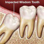 Răng khôn tiếng Anh là gì? Một số từ vựng nha khoa nên biết