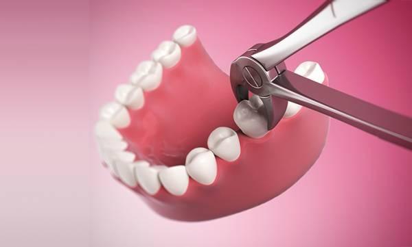 Răng số 7 bị lung lay, nhổ răng số 7 bị lung lay, nhổ răng số 7 bị lung lay có nguy hiểm không, nhổ răng số 7 bao nhiêu tiền