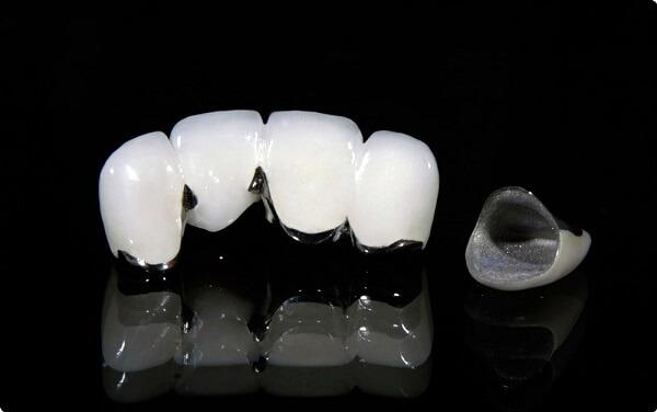 răng sứ titan có tốt không, rang su titan co tot khong, răng sứ titan có mấy loại, răng sứ titan vita là gì, răng sứ vita có tốt không, răng sứ titan vita, răng sứ titan là gì, Bọc răng sứ Titan có mấy loại