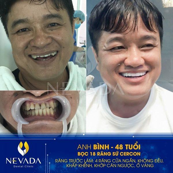 răng sứ titan, răng sứ titan có tốt không, răng sứ titan có bị đen không, bọc răng sứ titan giá bao nhiêu, răng sứ titan có mấy loại, bọc răng sứ titan, răng sứ titan sử dụng được bao lâu , răng sứ titan là gì, hình ảnh răng sứ titan, quy trình bọc răng sứ titan, có nên bọc răng sứ titan, giá răng sứ titan 2018, hình ảnh bọc răng sứ titan, trồng răng sứ titan giá rẻ, răng sứ titan gia bao nhieu, răng sứ titan và răng sứ kim loại, răng sứ titan bị đen, răng sứ titan bao nhiêu tiền, cách trồng răng sứ titan, quy trình trồng răng sứ titan, răng sứ titan vita là gì