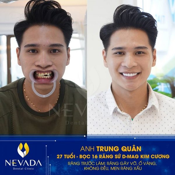 Răng sứ Titan có mấy loại, các loại răng sứ titan, răng sứ titan vita, răng sứ titan đức, răng sứ titan nhật, răng sứ titan và titan vita