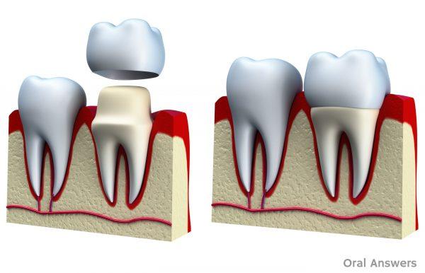 Bọc răng sứ Titan có mấy loại