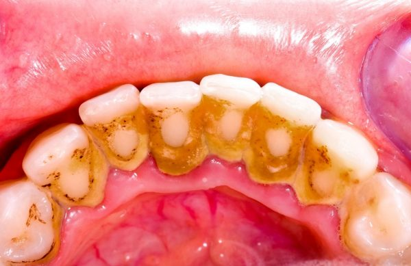 cách trị hôi miệng và làm trắng răng, cách chữa hôi miệng và làm trắng răng, chữa hôi miệng và làm trắng răng, cách làm trắng răng và trị hôi miệng, cách làm trắng răng và chữa hôi miệng, cách làm trắng răng và không hôi miệng, cách làm trắng răng và thơm miệng tại nhà, cách làm trắng răng và hết hôi miệng, cách làm trắng răng và thơm miệng, cách làm trắng răng và hơi thở thơm mát, cách trị hôi miệng và trắng răng, cách trị hôi miệng và vàng răng