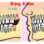 Răng khôn mọc khi nào, các triệu chứng mọc răng khôn là gì?