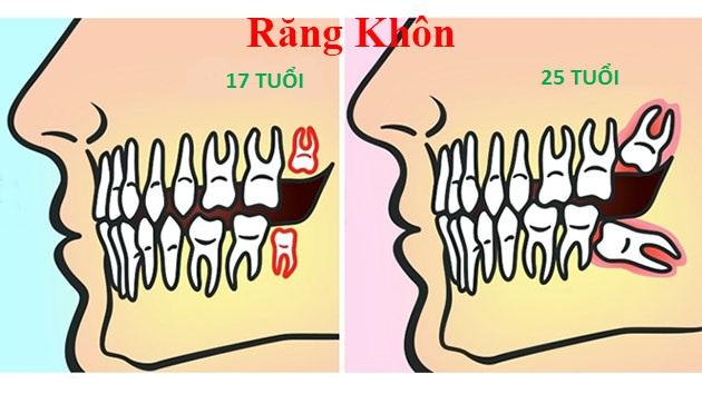 Răng khôn mọc khi nào, triệu chứng mọc răng