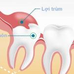 Giải đáp: Viêm lợi trùm răng khôn có tự hết không?
