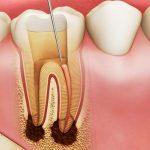 Răng bị chết tủy phải làm sao? Quy trình điều trị răng chết tủy như thế nào?