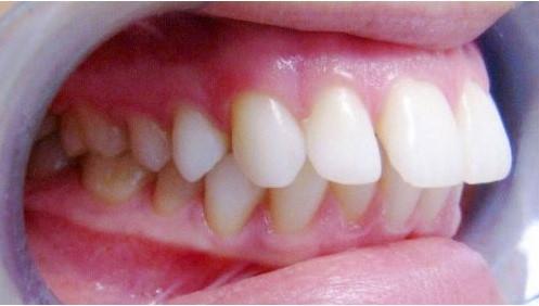 Bọc răng sứ cho người hô như thế nào ?Chi tầm giá là bao nhiêu ?