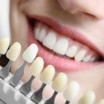 Có nên bọc răng sứ cho răng hô vẩu không? – Bác sĩ tư vấn