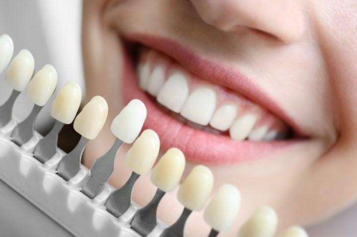 www.123nhanh.com: Bọc răng sứ báo giá bao nhiêu tiền khuyến mãi nhất? Nên