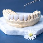 Giải đáp thắc mắc: Bọc sứ 4 răng cửa giá bao nhiêu?