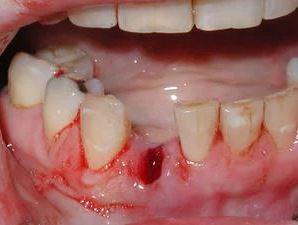 cục máu đông sau nhổ răng, cục máu đông sau khi nhổ răng, cục máu đông sau khi nhổ răng khôn, máu đông sau khi nhổ răng