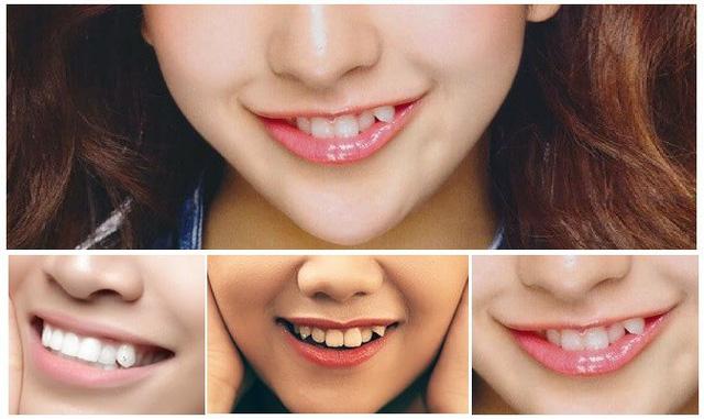 đắp răng khểnh đính đá, đắp răng khểnh được bao lâu, đắp răng khểnh đẹp, đắp răng khểnh giá bao nhiêu, quy trình đắp răng khểnh, đắp răng khểnh bao nhiêu tiền, đắp răng khểnh hết bao nhiêu tiền, cách đắp răng khểnh, hướng dẫn đắp răng khểnh, đắp răng khểnh giữ được bao lâu, đắp răng khểnh có được lâu không, đắp răng khểnh có hại không, đắp răng khểnh như thế nào, có nên đắp răng khểnh không, hình ảnh đắp răng khểnh, trồng răng khểnh có đau không, đính đá răng khểnh, có nên để răng khểnh
