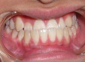 răng hàm dưới chìa ra ngoài, tại sao răng hàm dưới chìa ra ngoài, Nguyên nhân hàm răng dưới chìa ra ngoài, Cách chữa hàm răng dưới chìa ra ngoài, hàm răng dưới nhô ra, răng hàm dưới đưa ra, kéo cụm răng cửa là gì, hàm dưới nhô ra, hàm răng dưới, vẩu hàm dưới, răng chìa ra