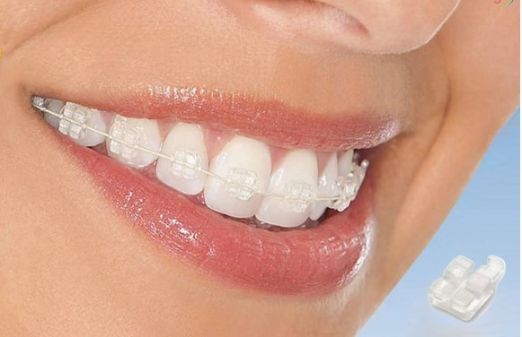 niềng răng bị hóp thái dương, niềng răng bị hóp má và thái dương, niềng răng hóp thái dương