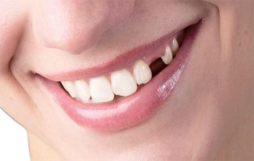 niềng răng nhổ răng số 5