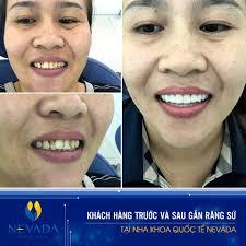 tại sao răng càng ngày càng hô, răng càng ngày càng hô, hô răng, răng bị hô phải làm sao, cách làm răng hết hô tại nhà, răng hô phải làm sao, cách làm răng hết hô, niềng răng có hết hô không , làm sao để răng hết hô, cách làm cho răng hết hô
