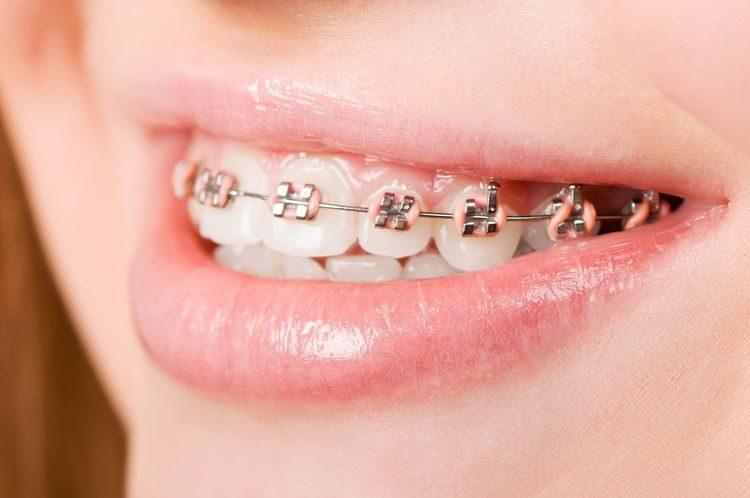 răng sứ titan sử dụng được bao lâu, răng sứ titan, răng sứ titan có bị đen không, răng sứ titan có mấy loại, bọc răng sứ titan, răng sứ titan là gì, hình ảnh răng sứ titan, quy trình bọc răng sứ titan, có nên bọc răng sứ titan, hình ảnh bọc răng sứ titan, trồng răng sứ titan giá rẻ, răng sứ titan và răng sứ kim loại, răng sứ titan bị đen, cách trồng răng sứ titan, quy trình trồng răng sứ titan, bọc răng sứ titan được bao lâu, bọc răng sứ titan có bị đen không, bọc răng sứ titan giá rẻ, bọc răng sứ titan có tốt không, review bọc răng sứ titan