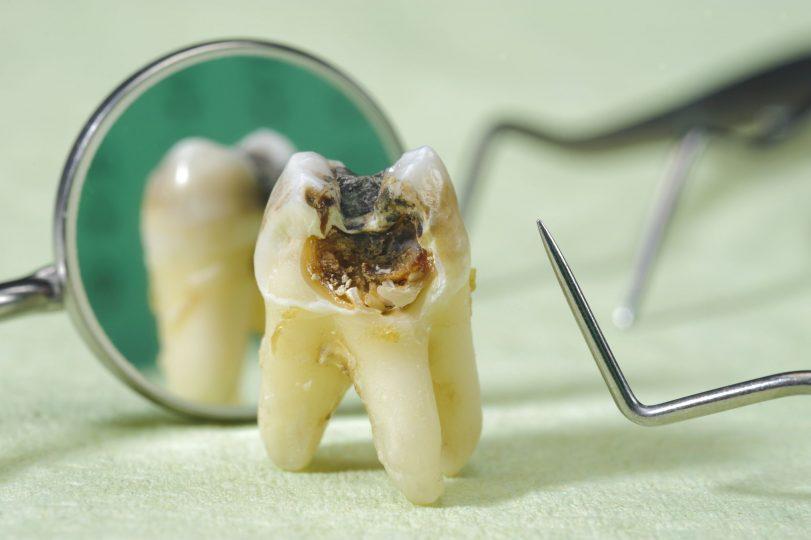 răng bị chết tủy phải làm sao, răng bị chết tủy,tủy răng bị chết, răng chết tủy phải làm sao, dấu hiệu răng bị chết tủy, cách chữa răng bị chết tủy, xử lý răng chết tủy, răng chết tủy có nên nhổ, răng chết tủy tồn tại được bao lâu, răng chết tủy thì sao, nhổ răng chết tủy có đau không, làm chết răng tủy, làm sao để biết tủy răng chết, răng chết tủy