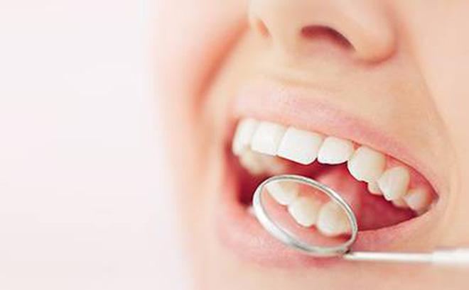 Sâu răng có niềng được không, răng sâu có niềng răng được không, răng bị sâu có niềng được không, bị sâu răng có niềng răng được không