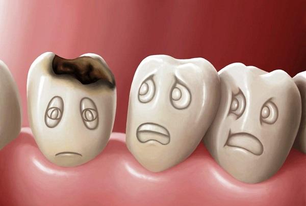 hàn răng có đau không, hàn răng mẻ, hàn răng bị mẻ, răng mẻ có hàn được không, răng sứt mẻ có hàn được không, hàn răng mẻ có đau không, hàn răng cửa bị mẻ, răng sứt mẻ có hàn được không, răng bị mẻ có hàn được không, mẻ răng cửa có hàn được không, răng hàm bị mẻ có hàn được không