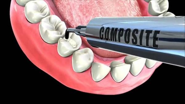 hà n răng mẻ,hà n răng bị mẻ,răng mẻ có hà n được không,răng sứt mẻ có hà n được không,hà n răng mẻ có đau không,hà n răng cửa bị mẻ,răng sứt mẻ có hà n được không,răng bị mẻ có hà n được không,răng mẻ ê buốt,răng mẻ có trám được không,răng mẻ bị nhức, răng mẻ thiếu chất gì,răng mẻ bị buốt,răng bị mẻ thì nên là m gì,răng bị mẻ lớn,răng bị mẻ đau nhức,răng bị mẻ ở chân răng,răng bị mẻ và lung lay
