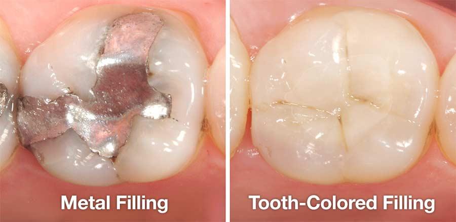 trám răng tiếng anh, trám răng tiếng anh là gì, trám răng tieng anh la gi, trám răng tiếng anh là