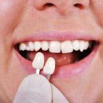 Địa chỉ trồng răng khểnh ở TpHCM AN TOÀN – UY TÍN
