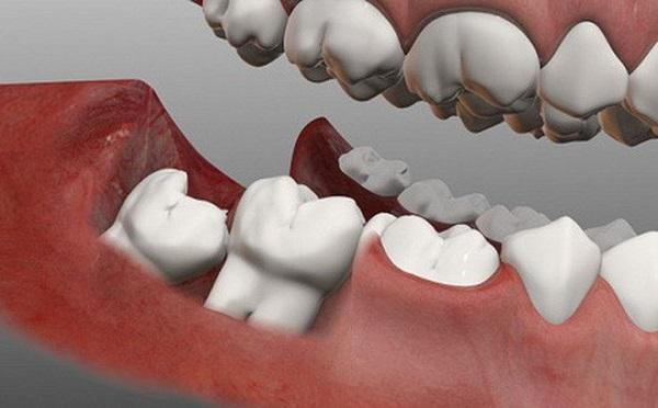 nhổ răng khôn bao lâu thì lành hẳn, nhổ răng khôn bao lâu thì lành, nhổ răng khôn sau bao lâu thì lành, nhổ răng khôn mất bao lâu thì lành, nhổ răng khôn bao nhiêu lâu thì lành, nhổ răng khôn sau bao lâu thì lành hẳn, sau khi nhổ răng khôn bao lâu thì lành, nhổ răng khôn hàm trên bao lâu thì lành, bao lâu thì vết nhổ răng khôn lành