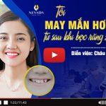 Diễn viên Châu Sa và những tâm sự sau khi bọc răng sứ