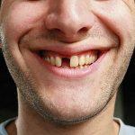 Bị gãy răng cửa phải làm sao? – Cách phục hồi răng cửa gãy hiệu quả nhất